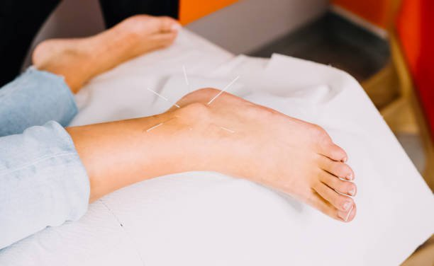 In anticipation of pain relief after acupuncture treatment for a sore ankle at the foot. Acupuncture treatment for a sore ankle at the foot.