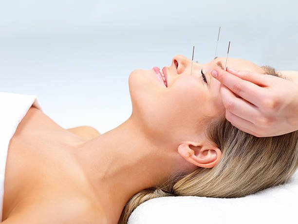 Beautiful young woman with eyes closed receiving Acupuncture therapy