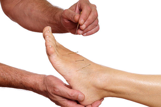doctor doing foot Acupuncture