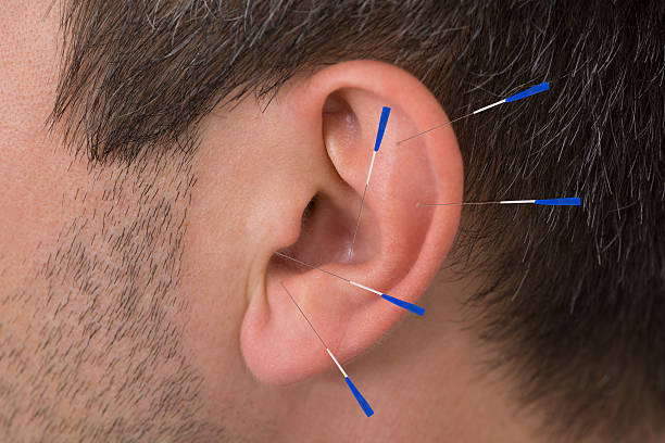 Close up Of Acupuncture Needles On Man's Ear
